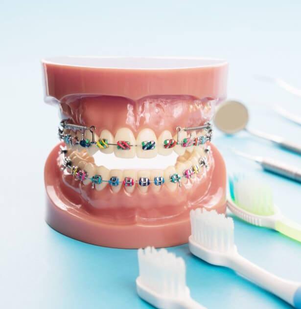 Ghizlane | Blog | Ortodontik tedavi sırasında ağız ve diş bakımında mutlaka bunlara dikkat edin
