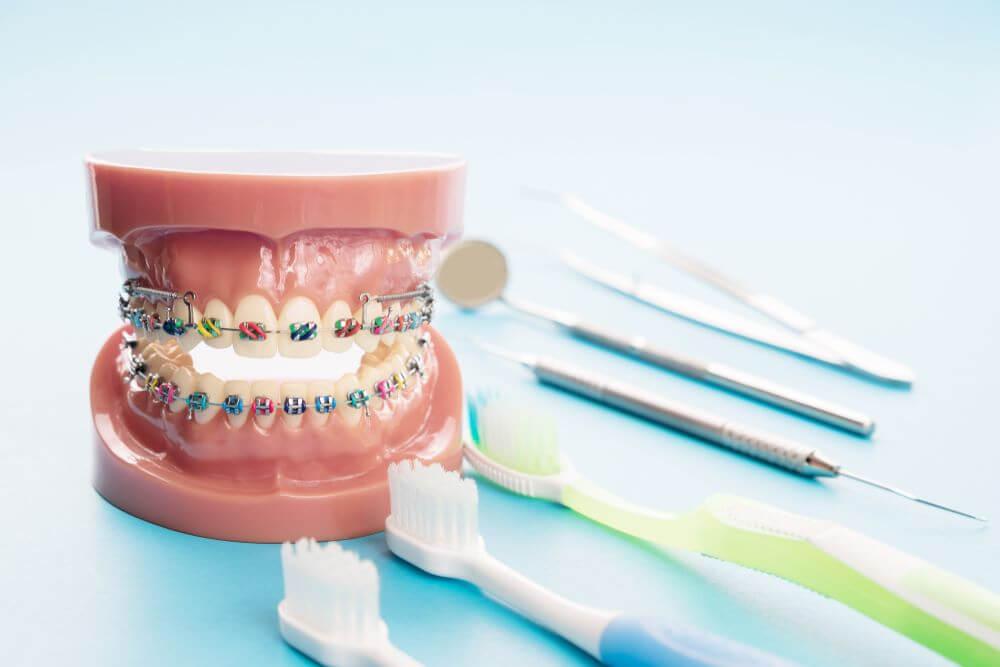Ghizlane Blog   Ortodontik tedavi sırasında ağız ve diş bakımında mutlaka bunlara dikkat edin