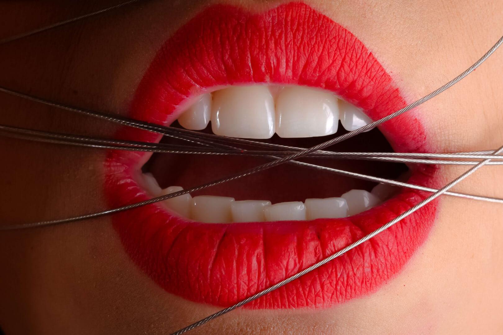 Ghizlane | Blog | Diş Hekimi ve Ortodontist Arasındaki Farklar
