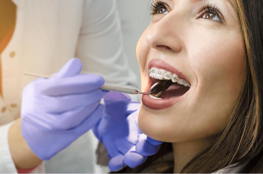 Ghizlane Blog | Yetişkinler İçin Ortodonti Tedavisi Nasıl Yapılır?